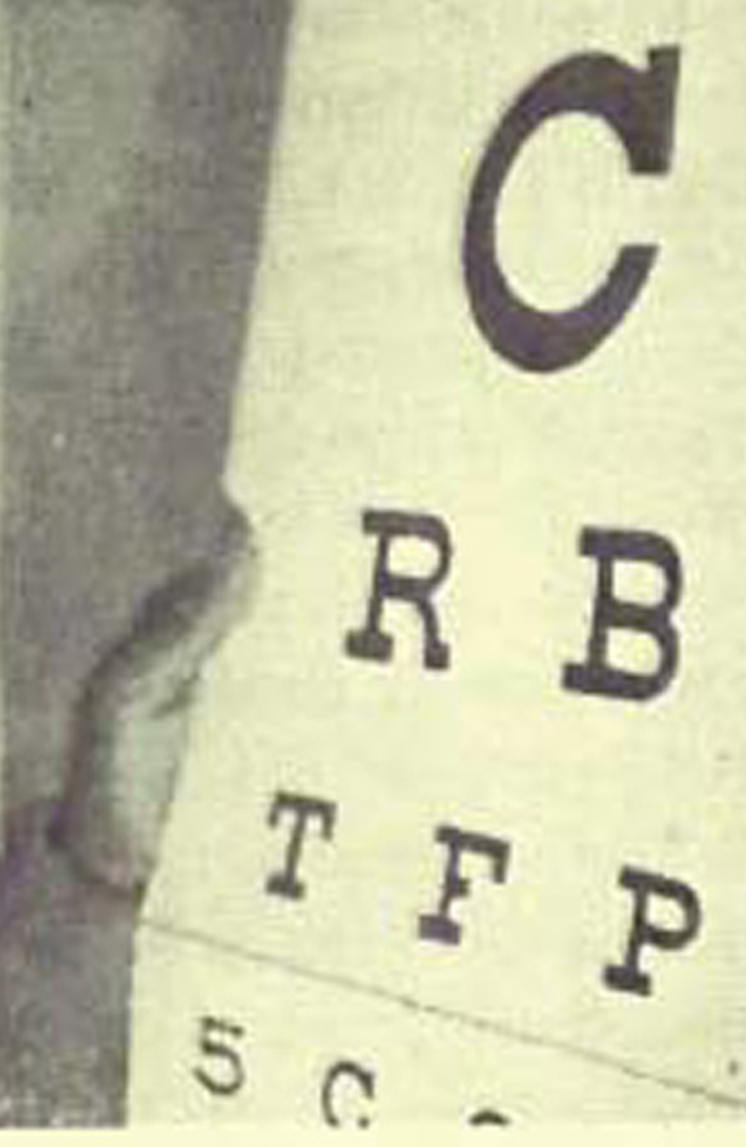Perfect sight without glasses dr bates original 1920 book in the perfect sight without glasses patient in dr bates clinic uses palming and eyechart to cure extreamly low vision nvjuhfo Images